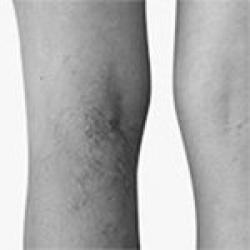 vein treatments bw